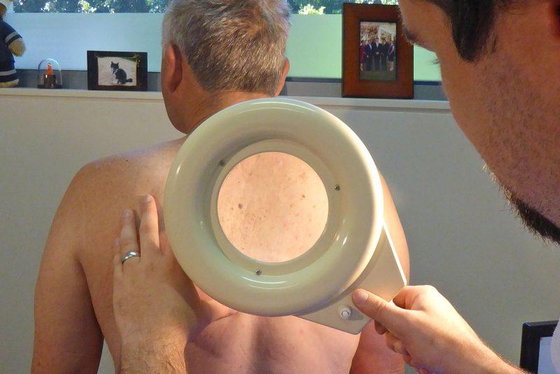 port_macquarie_skin_cancer_clinic_5